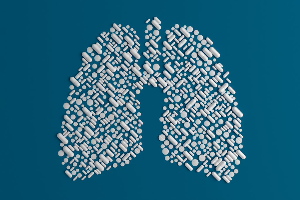 kanker paru paru menyerang anak muda